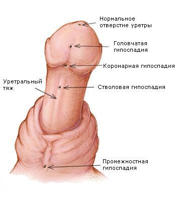 стволовая гипоспадия