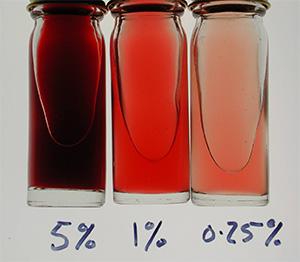 кровь в моче может бить симптомом гидронефроз