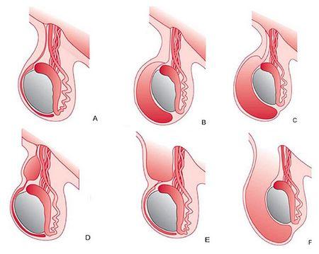 возможные варианты перекрута яичка