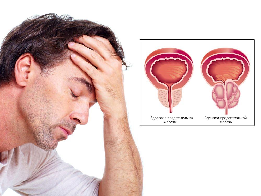 у мужчины  аденомы предстательной железы