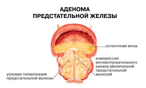 Цистит у мужчин нередко является следствием таких заболеваний, как аденома