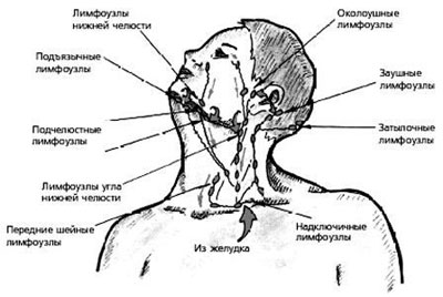 Лимфоузлы верхней части тела