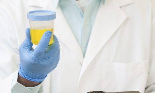При цистите в моче пациента содержится белок и повышенное количество лейкоцитов