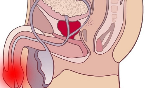 Причиной мужского цистита наиболее часто становятся вялотекущие воспалительные процессы в половой системе