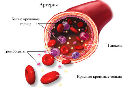 повышенный уровень глюкозы в крови