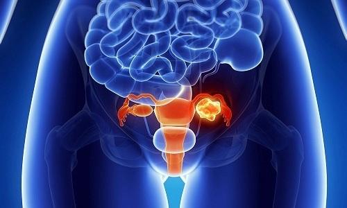 Ухудшение кровоснабжения в органах малого таза вызывает развитие хронического цистита