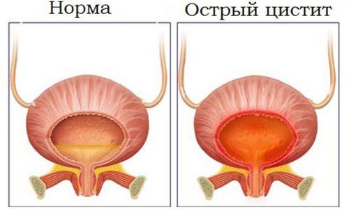 Хронический цистит чаще всего возникает после острого