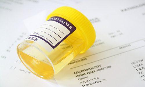 Бактериологический анализ мочи позволяет определить вид инфекции, которая поразила мочеполовую систему