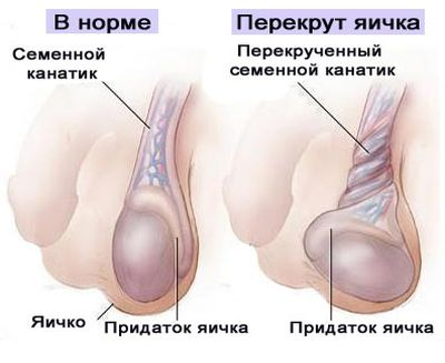 яички в норме и с патологтией