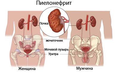 Острый пиелонефрит у мужчин и женщин