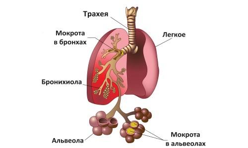 Схема пневмонии легких