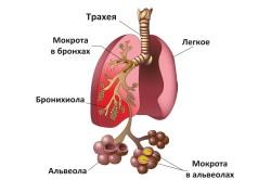 Схема легкого при пневмонии