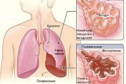 Легкое при сегментарной пневмонии