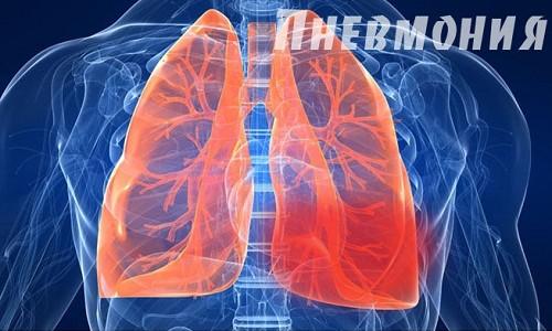 Пневмония является заболеванием легких