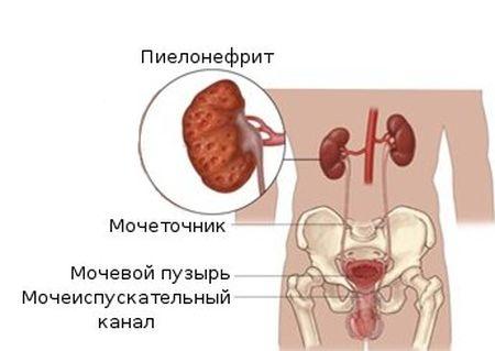 инфекция в почке