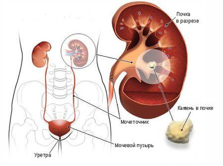 воспаление почек при гломерулонефрите