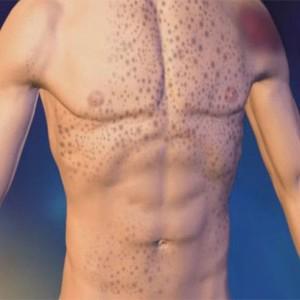 Что такое тромбоцитопения у взрослых