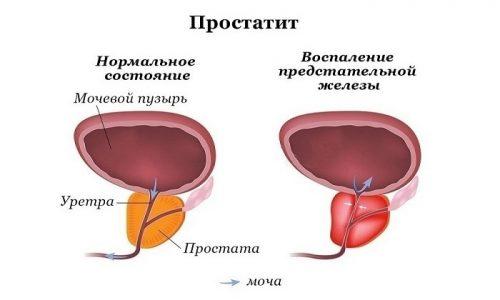 У мужчин воспаление мочевого пузыря часто возникает одновременно с развитием простатита