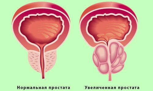 Простатит относится к патологиям предстательной железы воспалительного характера