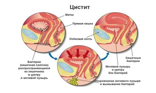 Воспаление слизистой мочевого пузыря, или цистит, - распространенное заболевание среди женщин, вызываемое болезнетворными бактериями