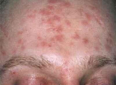 Сыпь при сифилисе