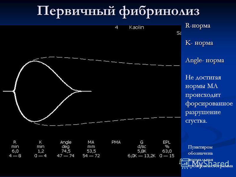 Анализ тромбоэластограмма