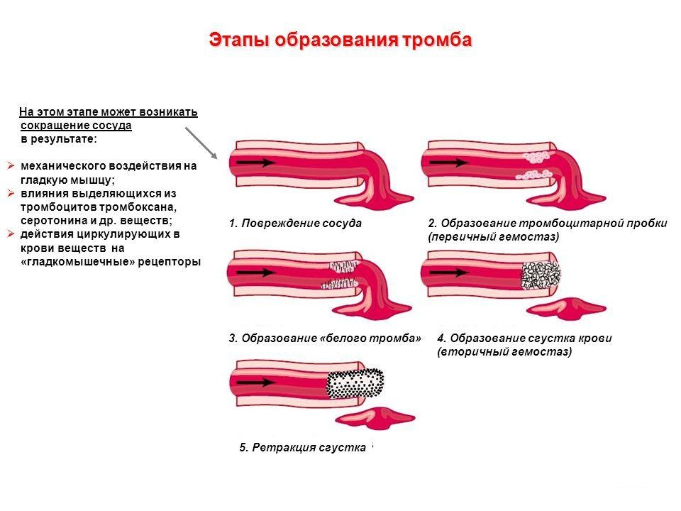 Стадии тромбоза
