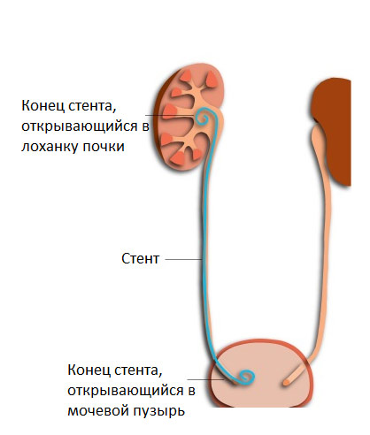 стент в почке
