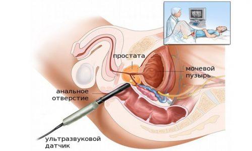 При трансректальном УЗИ аппарат вводится через задний проход, поэтому перед диагностикой необходимо очистить кишечник