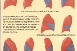 Варианты локализации воспаления легких при пневмонии