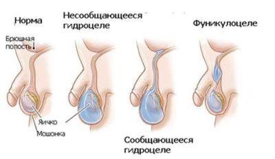 развитие гидроцеле яичек