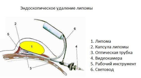 эндоскопическое удаление липомы